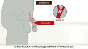 erectiestoornis behandelen